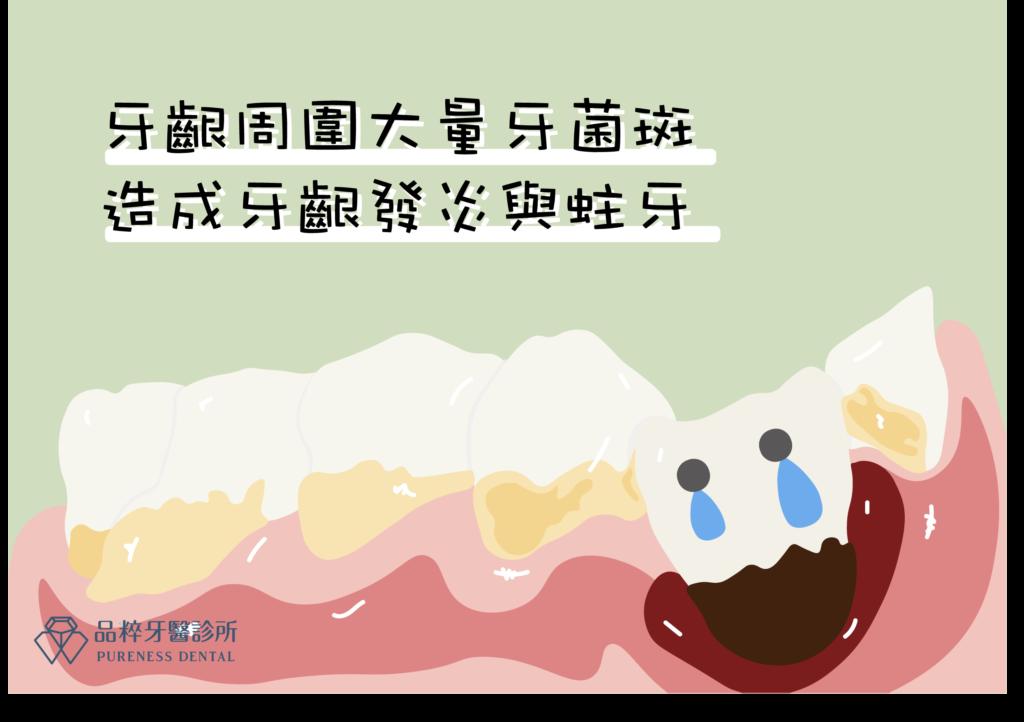牙齦周圍大量牙菌斑造成牙齦發炎與蛀牙