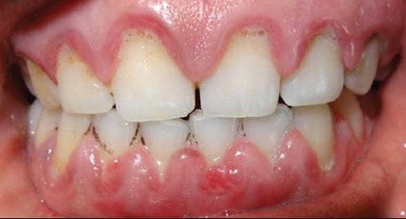 為患血友病的小朋友牙齦 來源於參考資料中標示