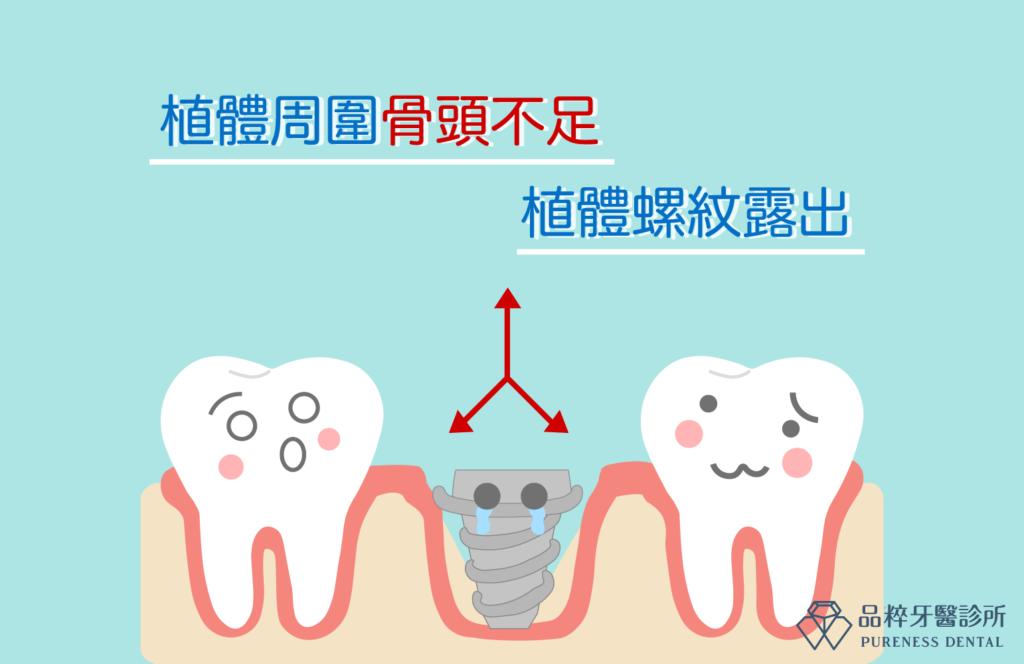 植牙周圍骨頭不足植體螺紋露出