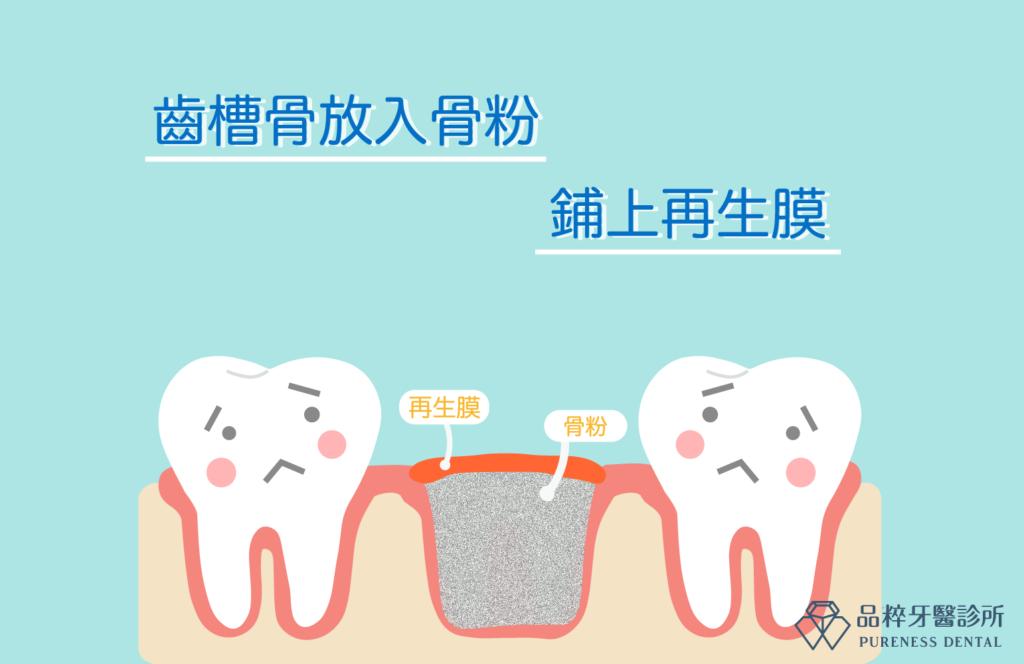 齒槽骨放入骨粉撲上再生膜