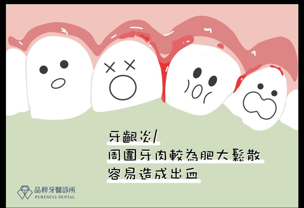 周圍牙肉較為肥大鬆散,容易出血