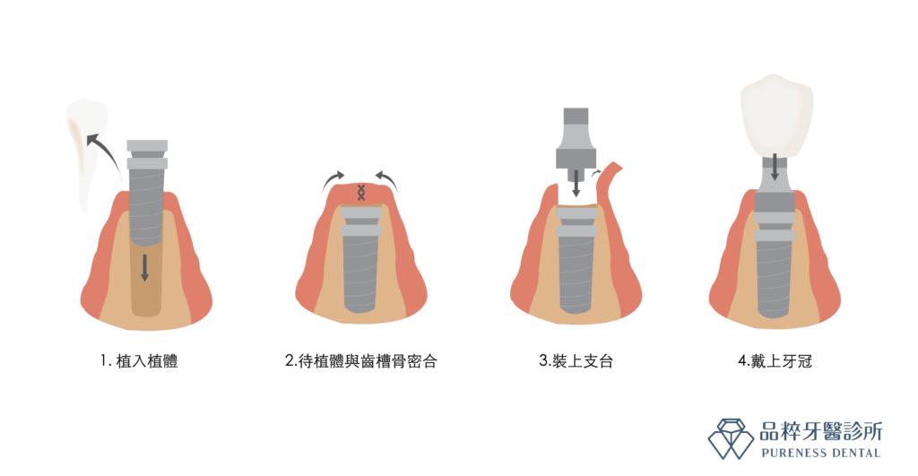 植牙骨整合的癒合過程