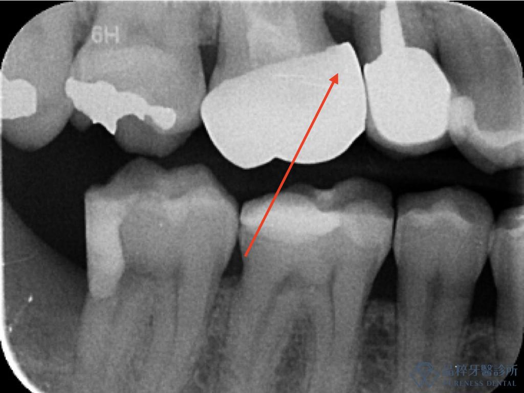 做的不平順的假牙不容易清潔造成一碰就流血 品粹牙醫診所/徐孟弘醫師提供