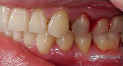 牙根凹陷造成敏感不舒服、牙齦流血 品粹牙醫診所/徐孟弘醫師提供
