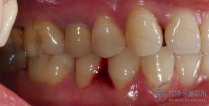 清潔非常乾淨的口腔,但是牙齒靠近牙肉處有些微的凹陷 品粹牙醫診所/徐孟弘醫師提供