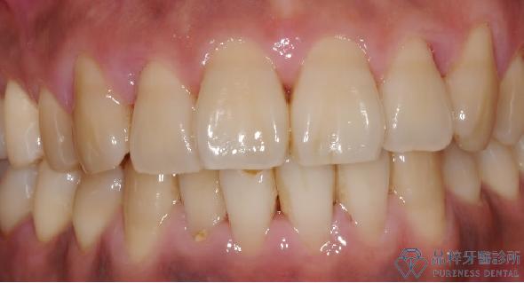健康的牙齦為粉紅色、結實的三角形牙齦,貼合在牙齒間隙 品粹牙醫診所/徐孟弘醫師提供