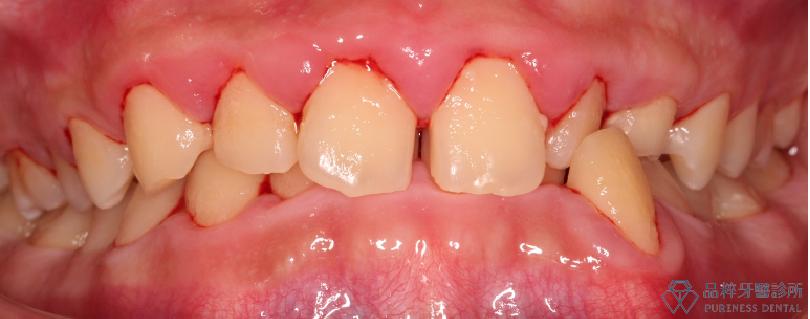 於懷孕期間且清潔不佳,導致牙齦腫脹 品粹牙醫診所/徐孟弘醫師提供
