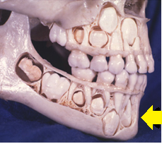 下排的恆牙牙胚 位在乳牙牙根處的偏內側 圖片來源:William R Proffit. Contemporary Orthodontics 5th ed Elsevier 2012.