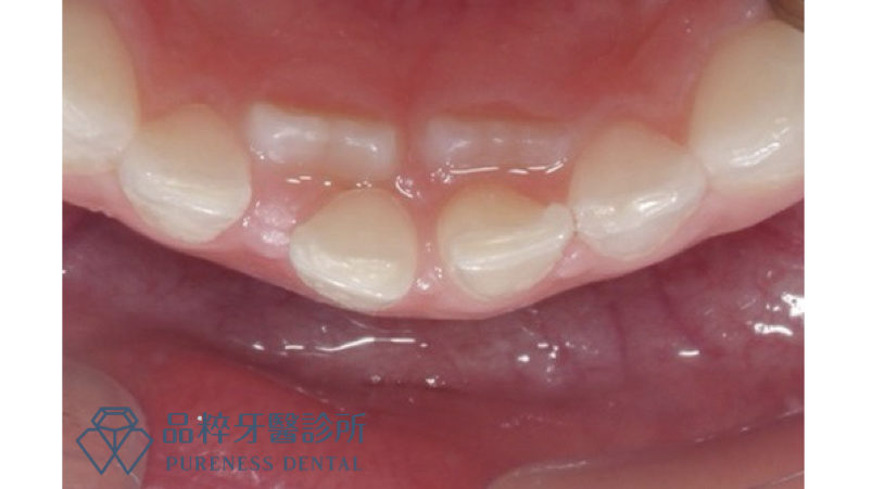 當孩子開始長牙,下排出現兩排牙齒 品粹牙醫許雯婷醫師提供