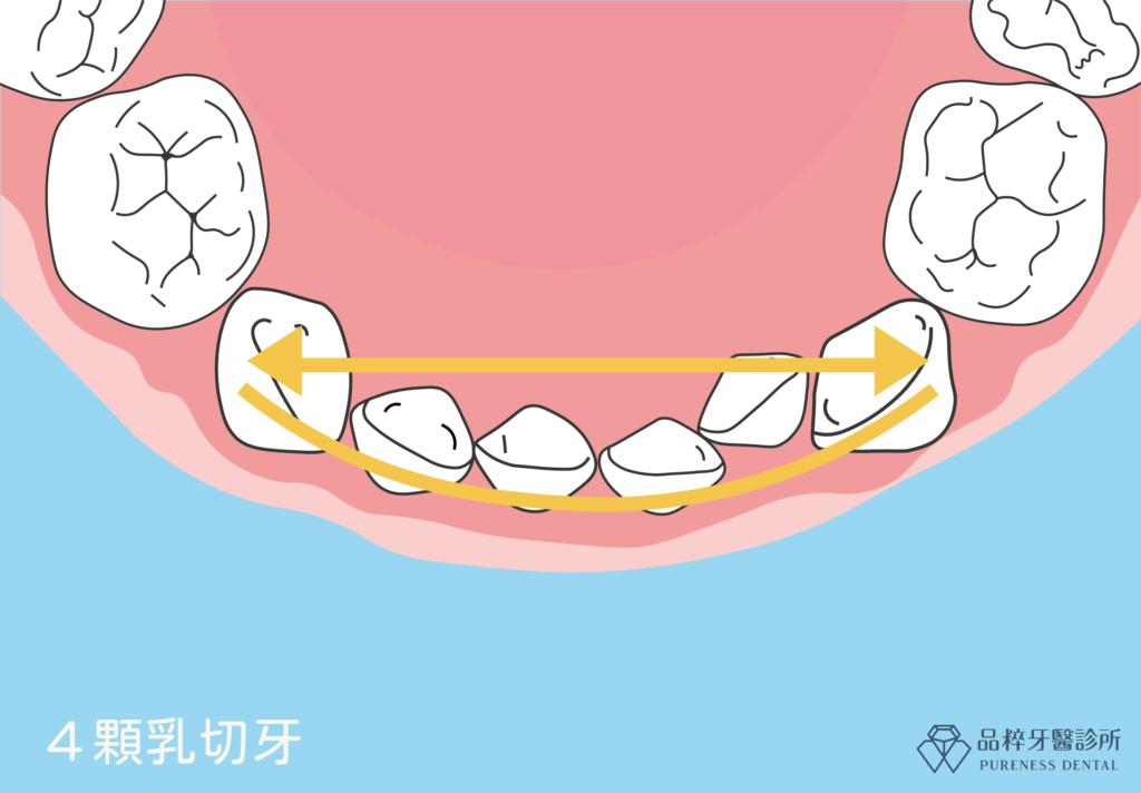 乳牙齒列-品粹牙醫診所