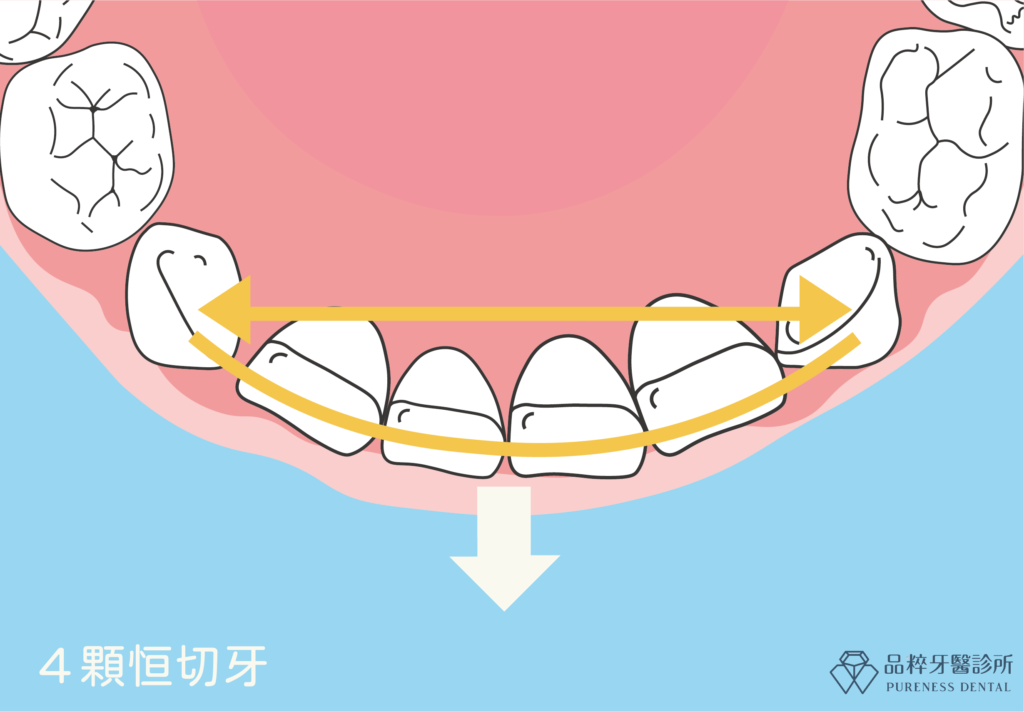 長四顆恆門齒後,牙弓寬度及彎曲度會自然增大-品粹牙醫診所