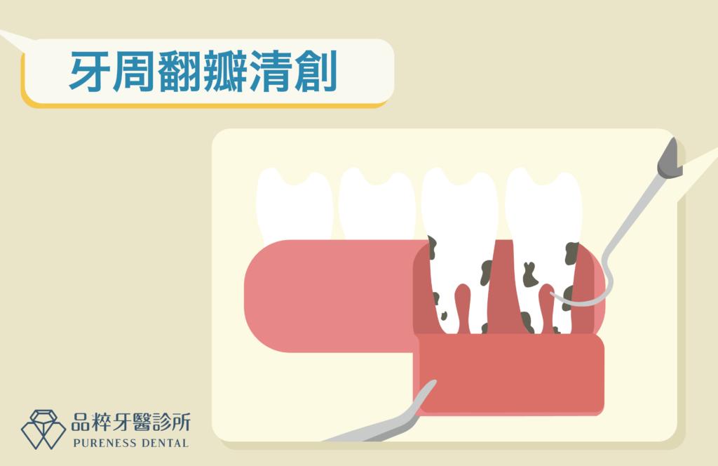 牙周翻瓣手術把牙肉翻開刮牙結石
