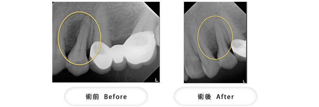 牙周病補骨術前術後X光片