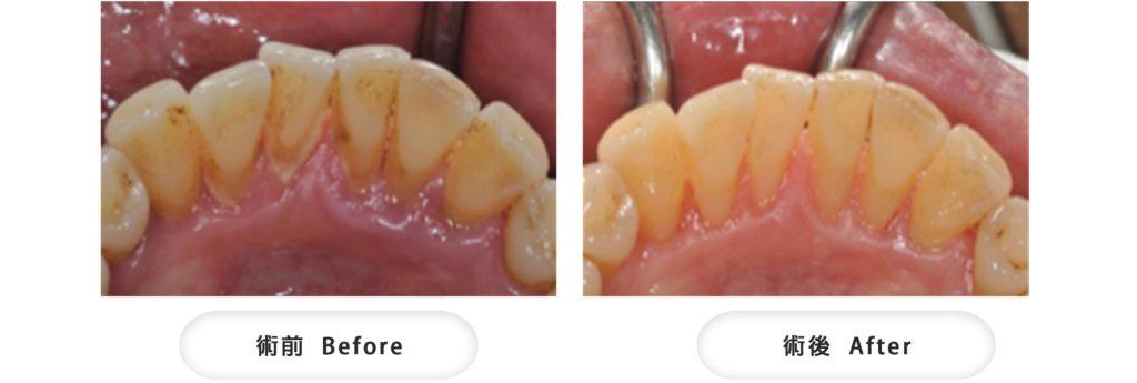 牙周病牙齦消腫